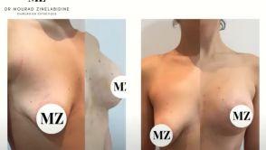 Augmentation mammaire (Seins tubéreux)