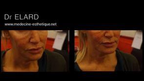 Restauration de l'ovale du visage et comblement des joues creuses