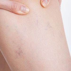 Scleroterapia – tratament performant pentru varice