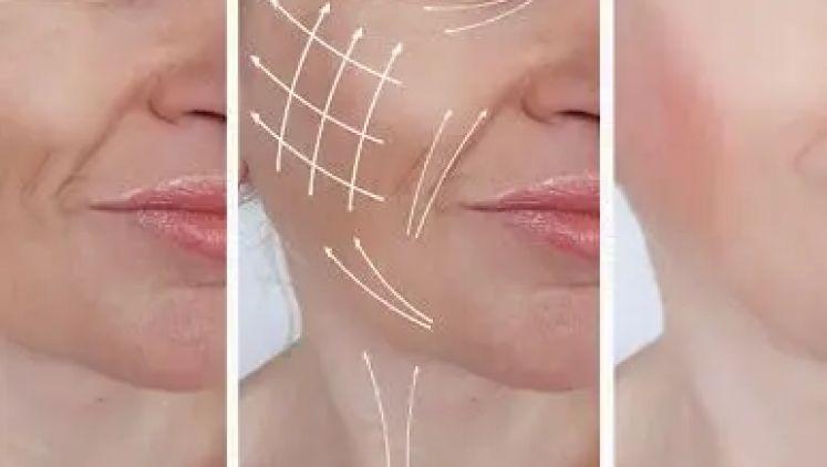 Les cicatrices du lifting du visage