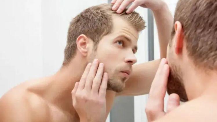 Qu'est-ce qu'une greffe de cheveux ?