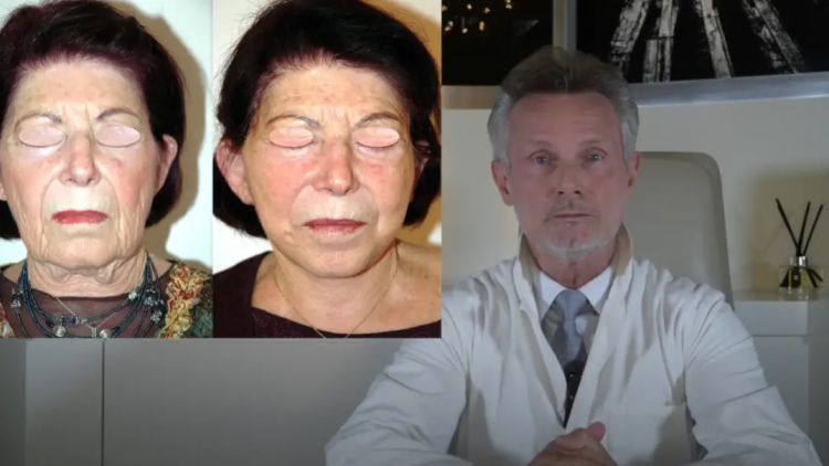 BAJOUES OVALE , COMMENT S'EN DEBARASSER ? TROIS SITUATIONS ! TROIS SOLUTIONS ! Dr J BUIS