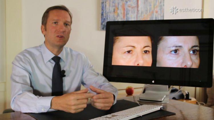Bléharoplastie - pour le regard plus frais